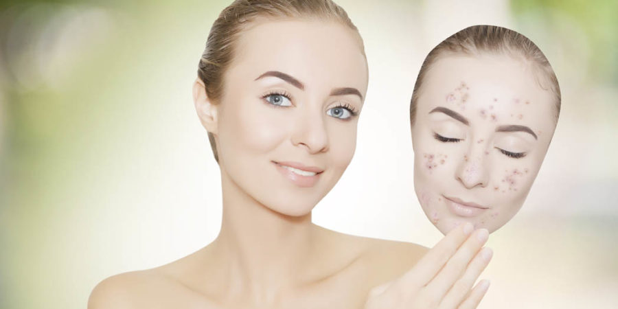 woman takes away mask with acne and pimples,green outdoor backgr