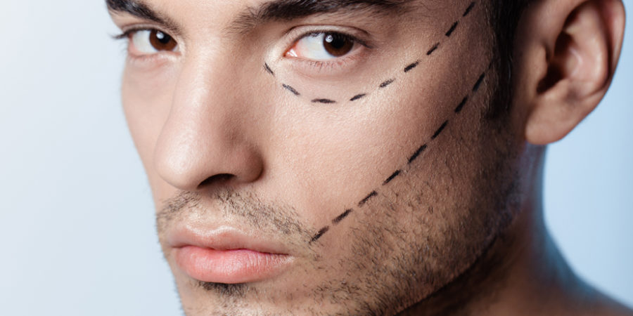 The man on the face is marked with guides before surgery filling